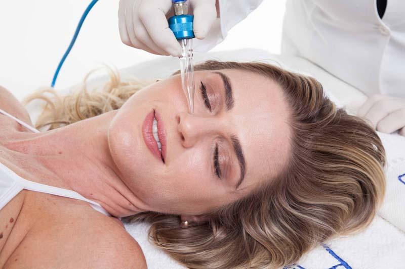 Eletrosucção Facial